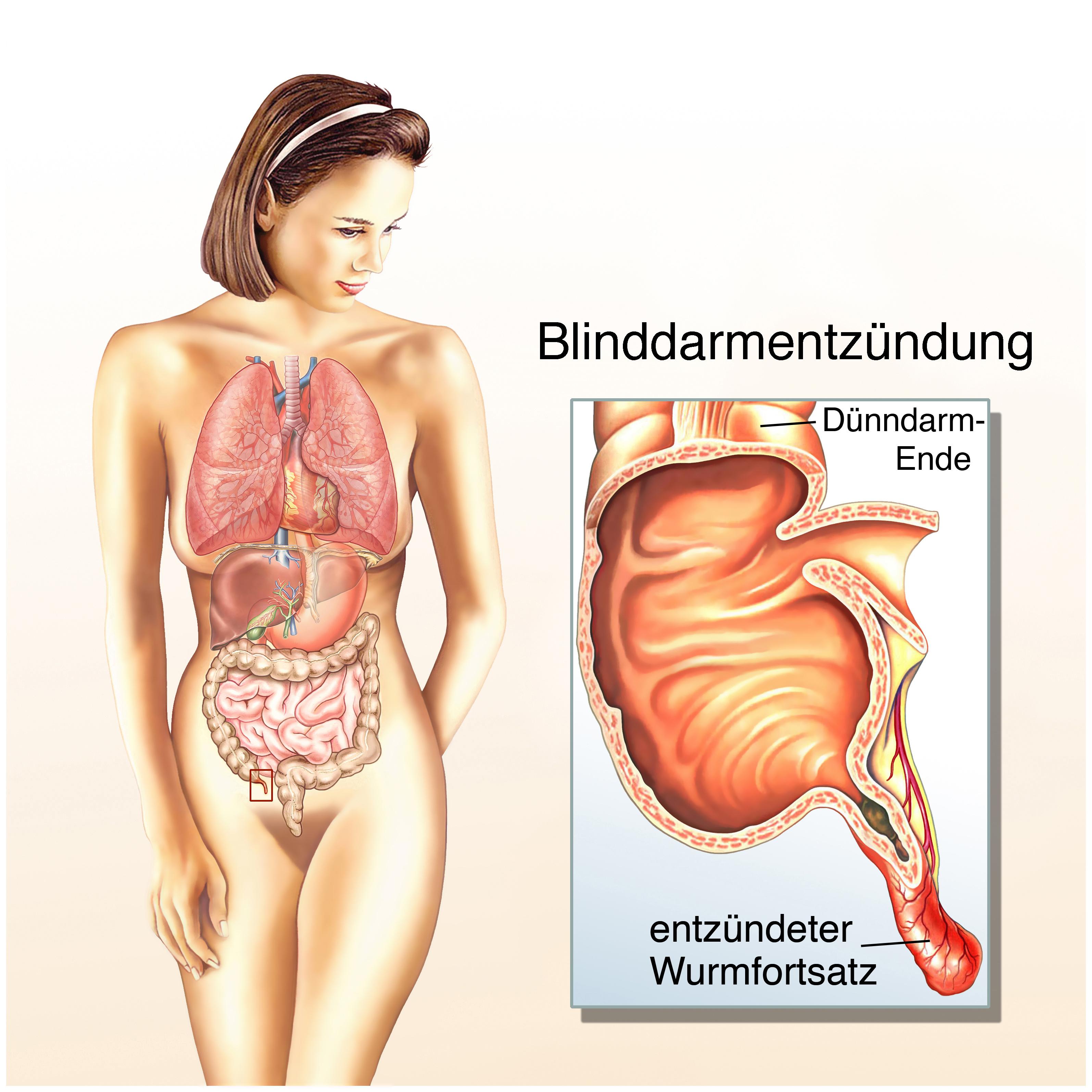 Blinddarmentzündung (Appendizitis) --> Symptome & Behandlungen