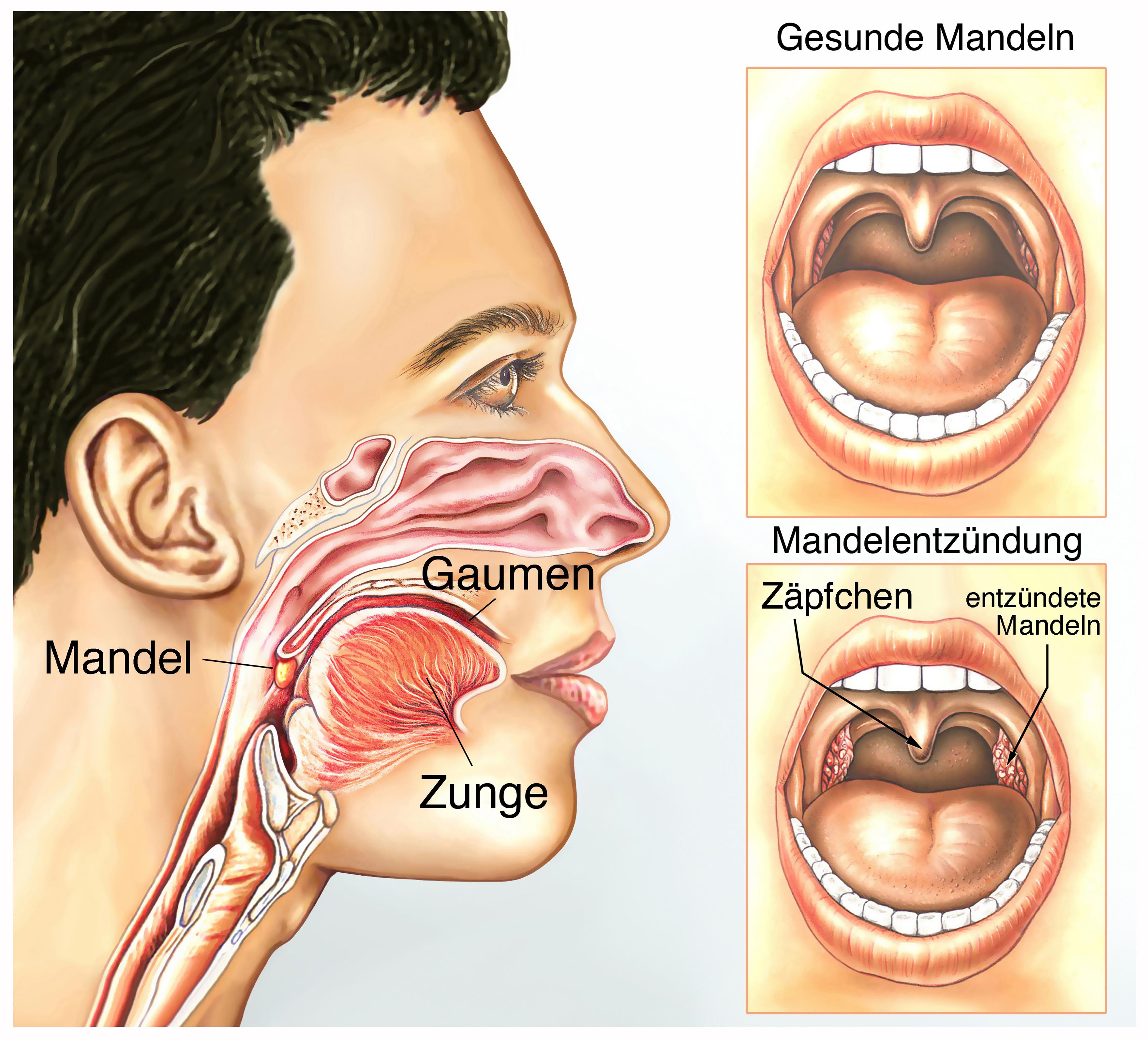 Sehnenscheidenentzündung (Tendovaginitis) --> Symptome, Verlauf ect