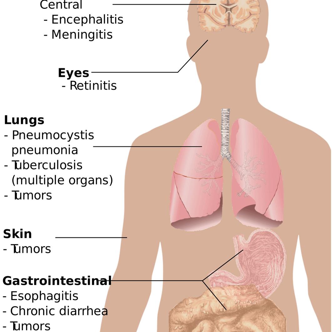 Anzeichen Von Corona Virus