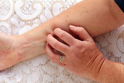 superfiziell spreitendes melanom
