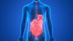darmverschlingung symptome